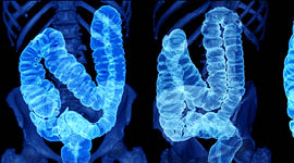 MITA Applauds New USPSTF Colorectal Cancer Screening Guidance