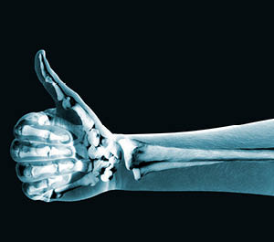 X-Ray-Imaging-Products-productIMG-300x265